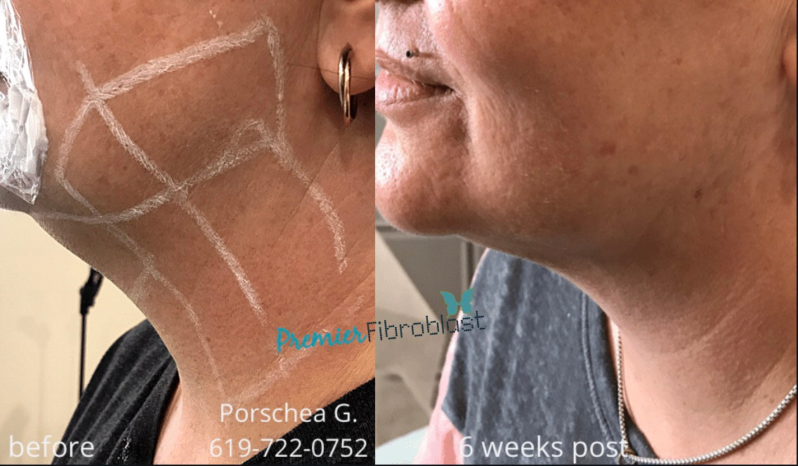 Premier fibroblast neck lift