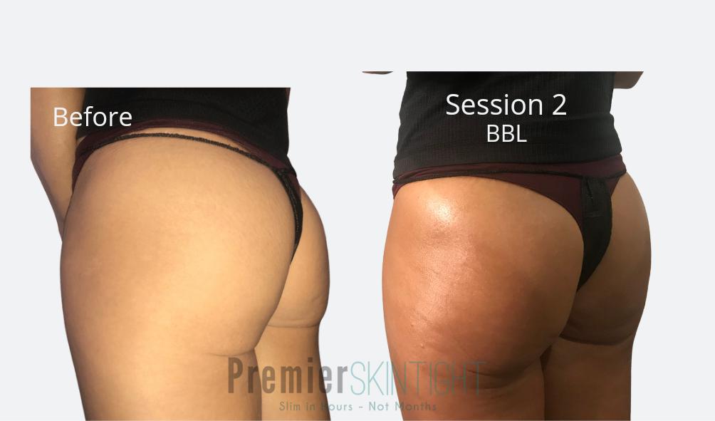 Reno-Non invasive BBL-5 sessions