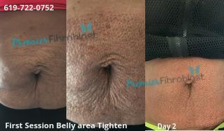 Premier fibroblast skin tightening