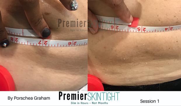 Premier Fibroblast_Premier Skintight