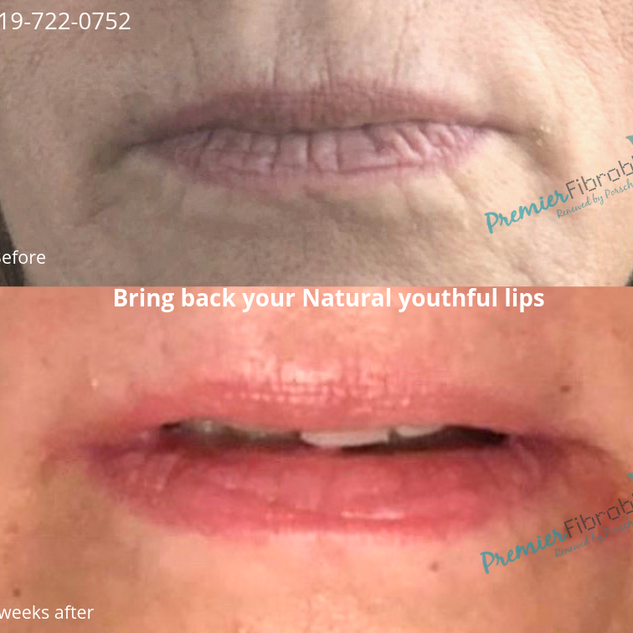 Premier Fibroblast before and after