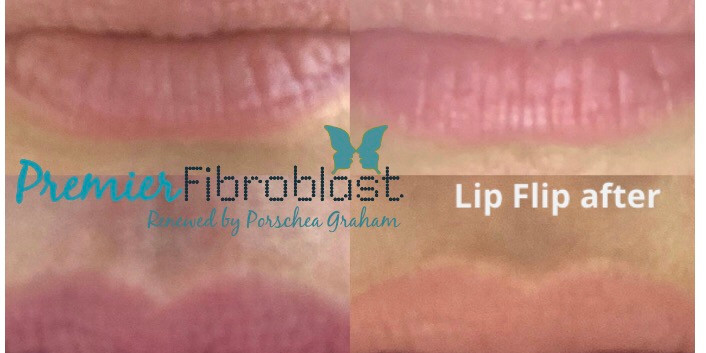 Upper Lip Flip-Premier Fibroblast