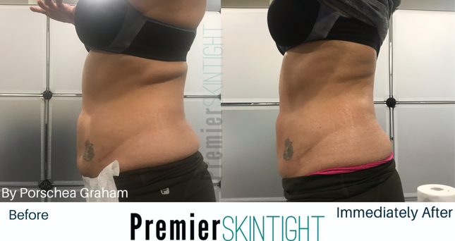 Premier Fibroblast/Premier Skintight