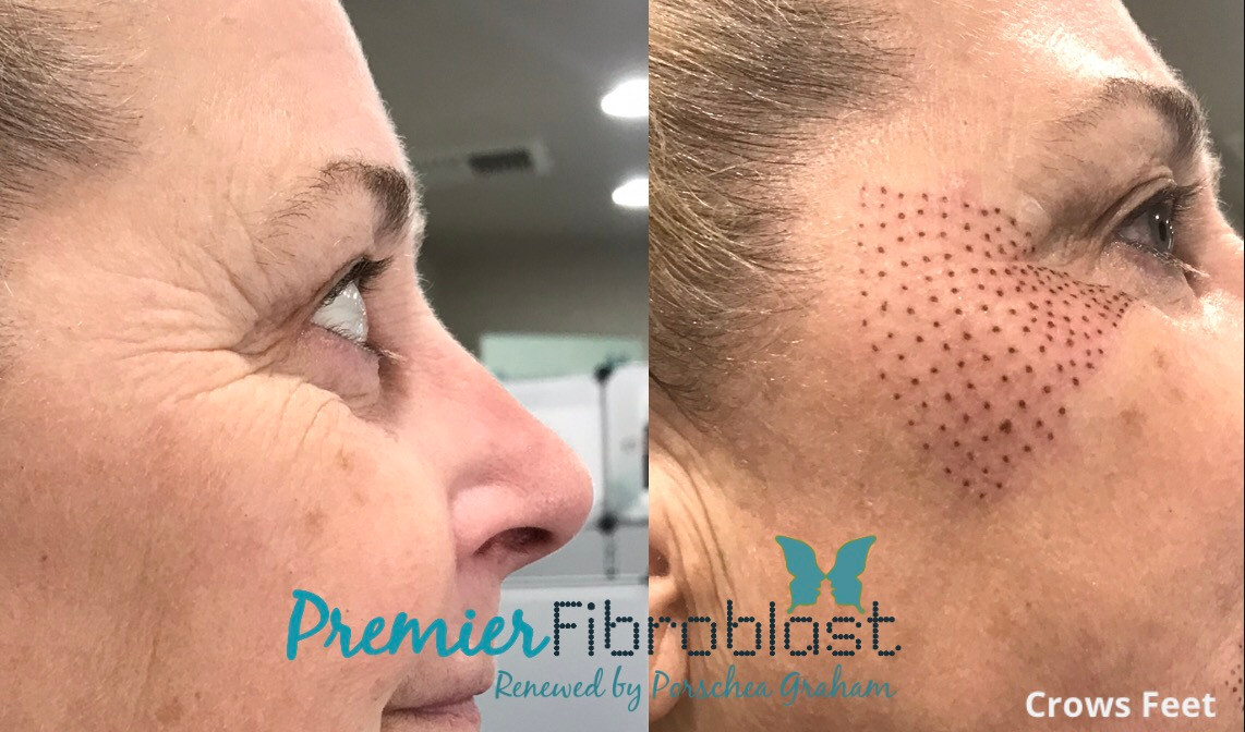 Crows Feet Premier Fibroblast