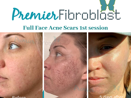 Why Fibroblast's Treatment Eliminates the Need For Traditional Skin Tightening