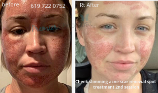 Acne Scare Removal 2 sessions