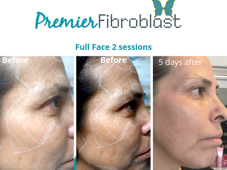 The Hottest New Trend In Skin Tightening Just For You