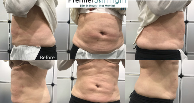 Premier Skintight-Premier Fibroblast.PNG