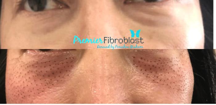 Premier Fibroblast.jpg