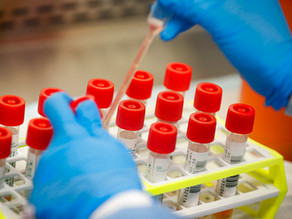 Possible HIV vaccine shows promise, researchers say