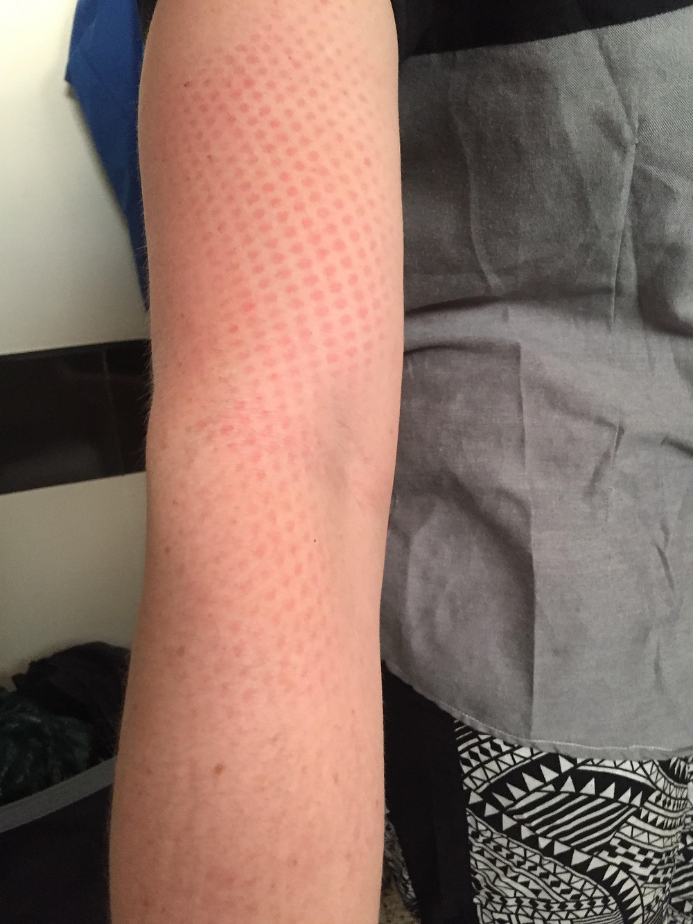 'French Stick' sunburn