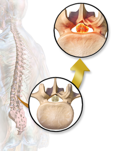 """Spinal Stenosis (spinal canal). Attribution : By BruceBlaus. When using this image in external sources it can be cited as:  Blausen.com staff (2014). """"Medical gallery of Blausen Medical 2014"""". WikiJournal of Medicine 1 (2). DOI:10.15347/wjm/2014.010. ISSN 2002-4436. (Own work) [CC BY 3.0 (http://creativecommons.org/licenses/by/3.0)], via Wikimedia Commons"""