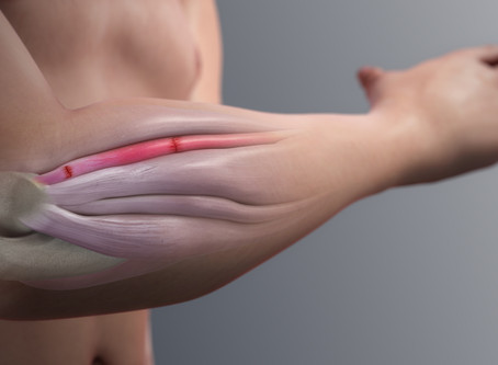 Painful Elbow? Could it be 'Tennis Elbow'?