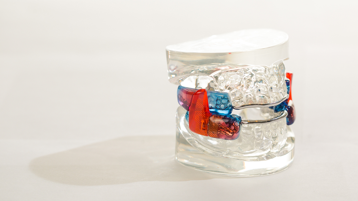 Oral_Appliance_02