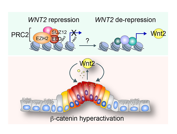 Wnt2 in colorectal cancer