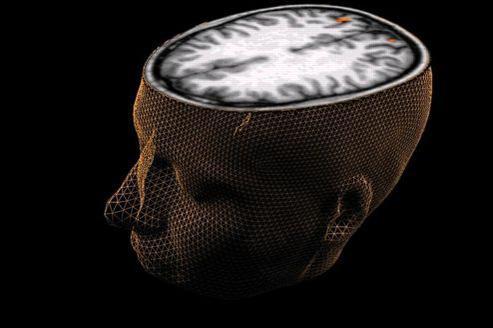 Les acquis de nos aptitudes manuelles et intellectuelles dépendent d'une machinerie cérébrale parfaitement ordonnée et bien hiérarchisée