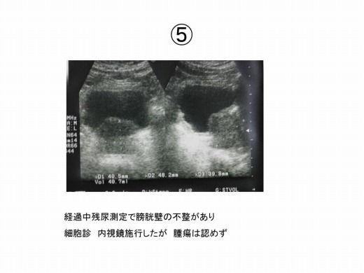 前立腺肥大症 診断