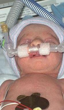 Lily's Birthday - July 25, 2007 - CPAP (3).jpg