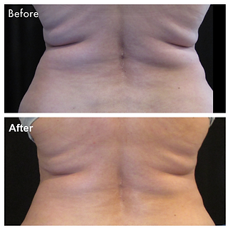 Back before and after CoolSculpting
