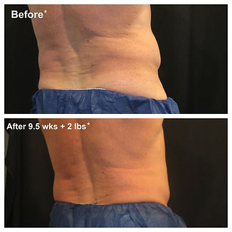 Man before and after CoolSculpting