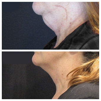 Double chin before and after CoolSculpting c