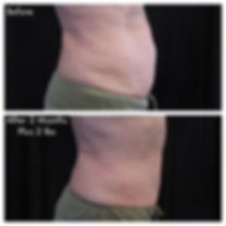 Abdomen before and after CoolSculpting
