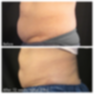 Belly fat before and after CoolSculpting