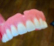 Стоматолог на дому. Удаление зубов на дому. Протезирование зубов.