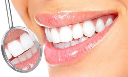 Безопасное отбеливание зубов в домашних условиях.