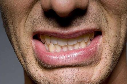 Опасен ли бруксизм: почему ребенок скрипит зубами во сне?