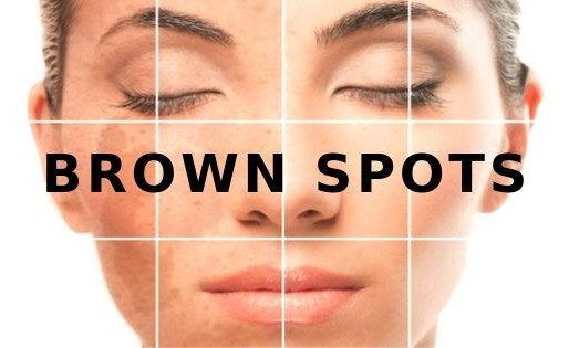 Brown Spots, What Are They And Why They Occur?