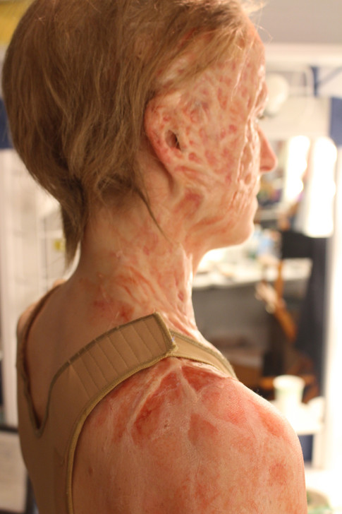 Silicone Prosthetic; Applied and Painted By: Kelly Budd     Designed, Sculpted and Molded  By: Vincent Schicchi and Tom Deiner