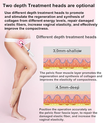 two depth vaginal HIFU.PNG