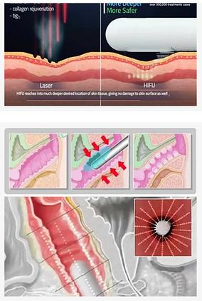 vaginal tightening.PNG