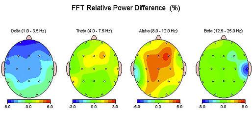 Alpha Stim EEG Study.jpg