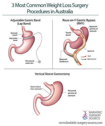 Bariatric, Bariatric surgey, Weight Loss surgery, Surgery, Gastric Bad, Roux-en-Y, Sleeve Gastrectomy, Sleeve, Surgry