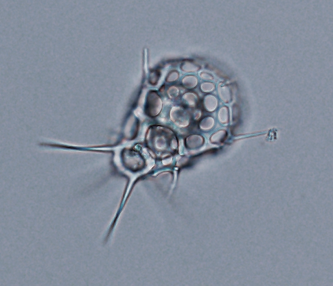 An unknown radiolarian collected in the Solomon Islands