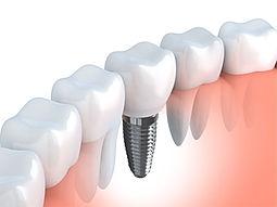Clinica, dental, dentista, odontologica, las condes, santiago, beauvisage, odontologia, dientes, implante, implantologia, implantologo