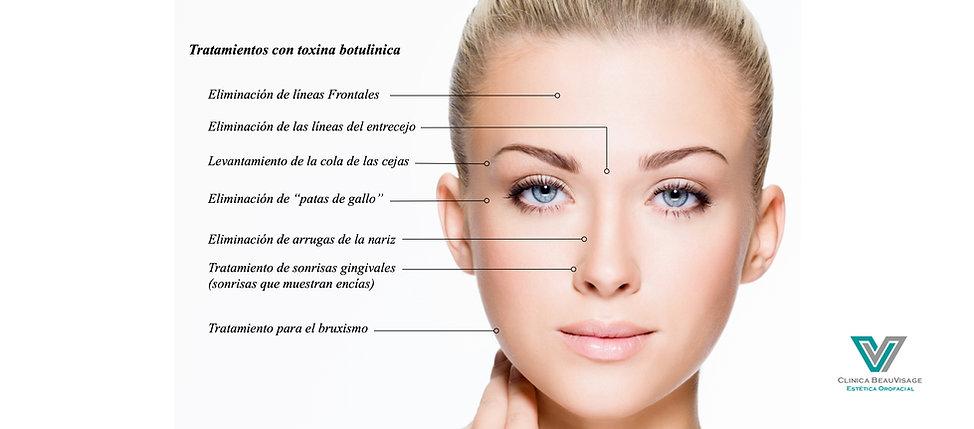 Botox, clinica beauvisage, estética, arrugas, bruxismo, sonrisa gingival, las condes, santiago, patas de gallo, rejuvenecimiento, facial