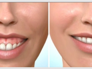 Tratamiento de Sonrisa Gingival con Toxina Botulínica