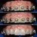Sonrisa Gingival ¿Cuáles son las alternativas de tratamiento?