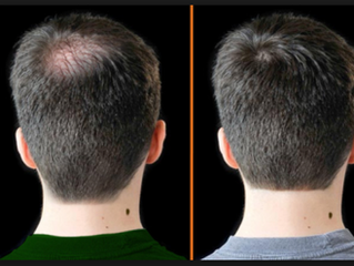 Bioestimulación con Plasma Rico en Plaquetas para la caída del cabello y Alopecia