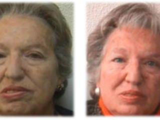 Toxina Botulínica en pacientes con Parálisis Facial
