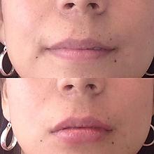 Aumento de labios, acido hialuronico, antes y despues