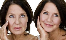Mesoterapia, facial, clinica beauvisage, estética, santiago, las condes, rejuvenecimiento facial