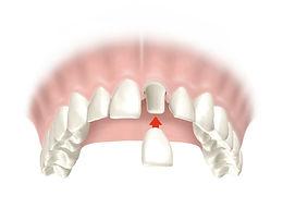 Clinica, dental, dentista, odontologica, las condes, santiago, beauvisage, odontologia, rehabilitatción oral, dientes, destartraje, limpieza, restauracion