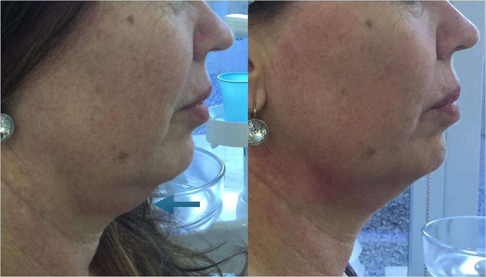 Rejuvenecimiento de cuello con Hilos Tensores