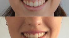 Tratamiento para la sonrisa gingival con Botox