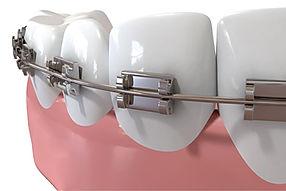 Clinica, dental, dentista, odontologica, las condes, santiago, beauvisage, odontologia, dientes, ortodoncia, ortodoncista, frenillos, ortopedia, aparetos, brackets, maloclusion