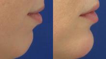 Bioplastía facial con Ácido Hialurónico